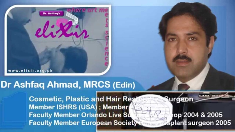 Hair Transplant, Best 5 Hair Transplant Centers in Islamabad – Pakistan