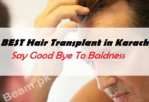 Best Hair Transplant in Karachi