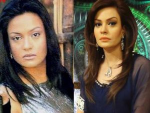 Plastic Surgery, Top 10 Pakistani Actress Who opts Plastic Surgery (Before and After)