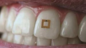 sensor, Tooth Sensor Discovered to Keep Track of What You Eat and Drink